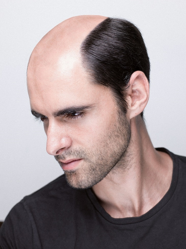Hairskeen, premier réseau de remplacement capillaire 4