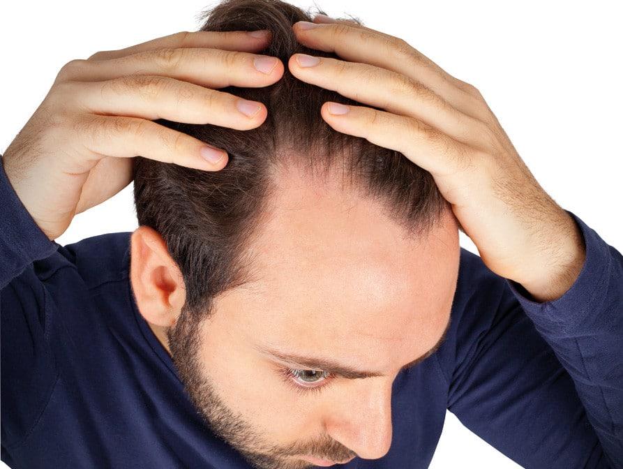 Hairfax solutions et traitement anti chute de cheveux for Perte de cheveux homme